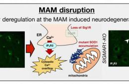 Image shows a schematic for MAM distribution in ALS.