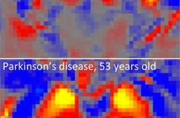 Image shows iron content in both a parkinson's patient's brain and that of a person without the disease.