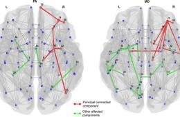 Image shows neural connections in brain scans.