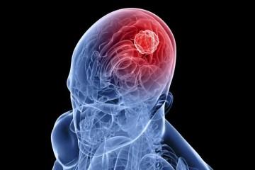 a head and brain.