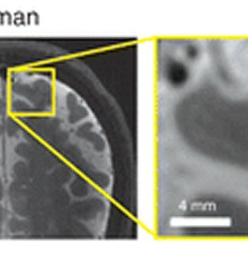 Image shows a microinfarct in the human brain.