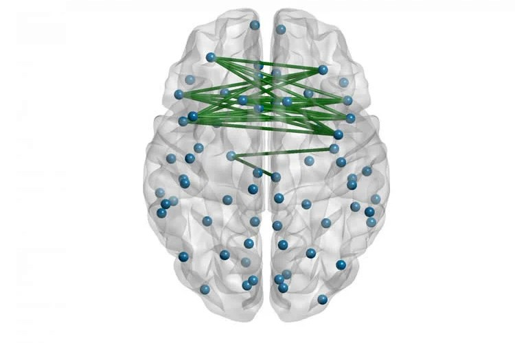 Image shows a brain with networked nodes.