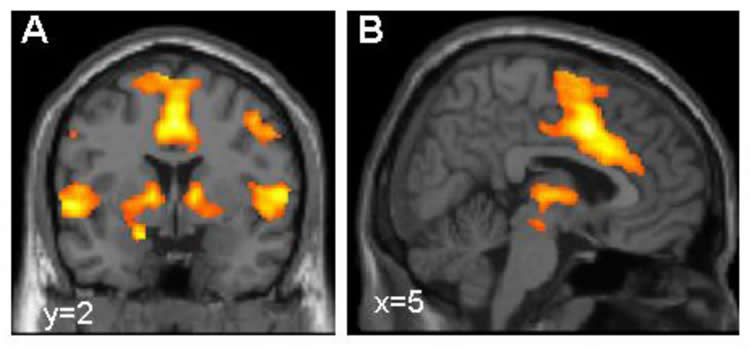 Image shows brain scans with the fear network highlighted in orange.