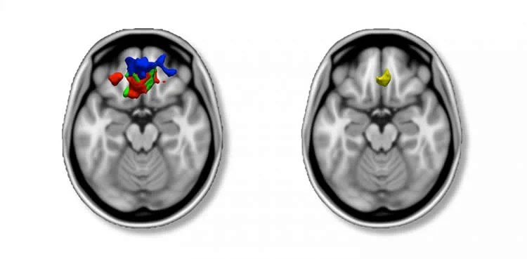 Image shows brain scans of people with ADHD.