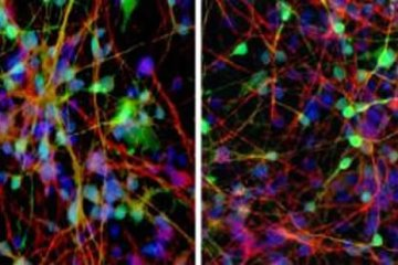 Image shows a neurons of people who responded to lithium therapy for depression.