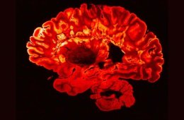 Image shows a brain scan of a person with multiple sclerosis.