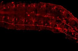 Image shows sensory neurons in a Drosophila larva.