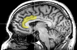Image shows the location of the ACC in the human brain.