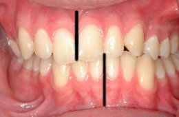 Image shows teeth.