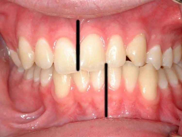 Image shows teeth.