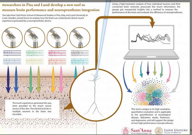 the neuroprosthesis