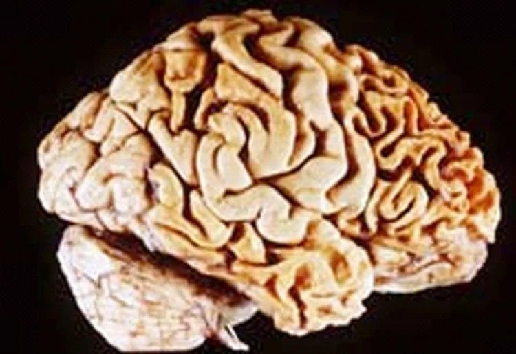 Image shows a brain of a person with frontotemporal dementia.