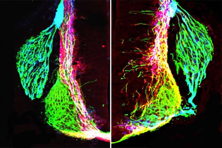 Image shows axons.