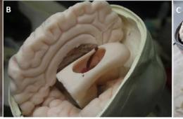 Image shows the brain model.