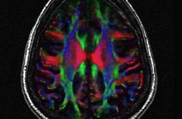 a brain scan.
