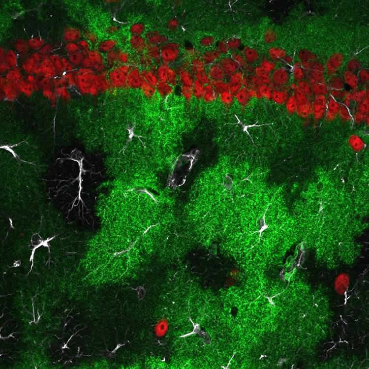 Image shows astrocytes and neurons.