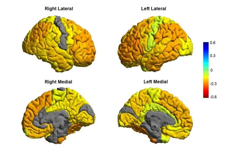 Image shows brain scans of bipolar patients.