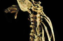 Image shows the spine.