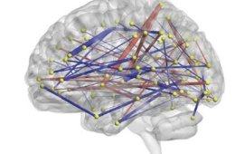 Image shows a brain with lines to represent a network.