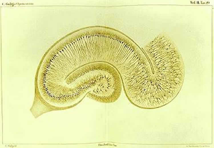 Image shows a hippocampus.