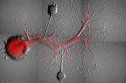 Image shows Aplysia sensory neurons.