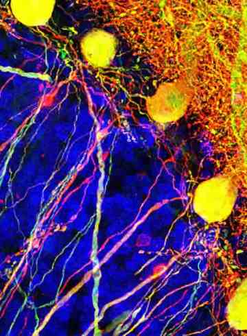 Image shows purkinje cells.