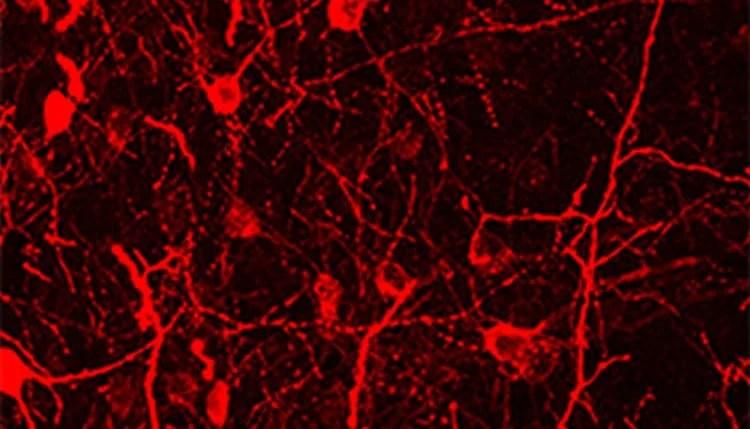 Image shows striatal neurons.