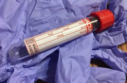 Image shows a blood sample in a tube.