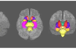 Image shows brains with the subcortical structures highlighted.