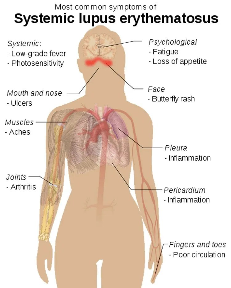 Image shows a diagram of how lupus affects the body.