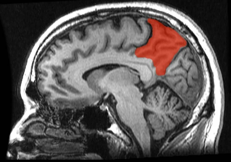 Image shows the location of the prencueus in the brain.