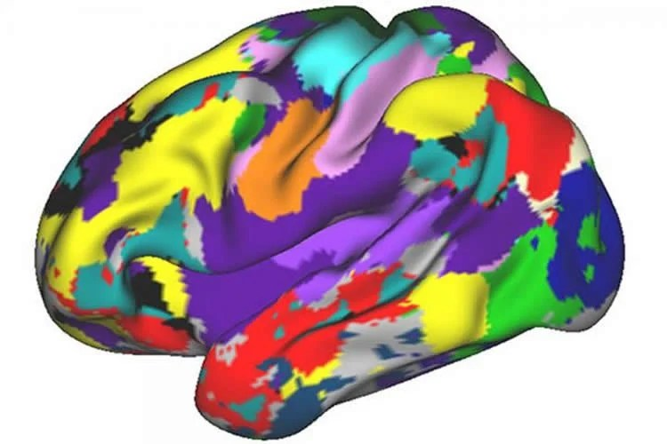 Image shows a brain scan of one of the researchers.
