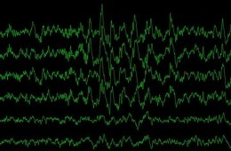 Image shows a print out of brain waves.
