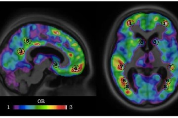 Image shows a brain scan.