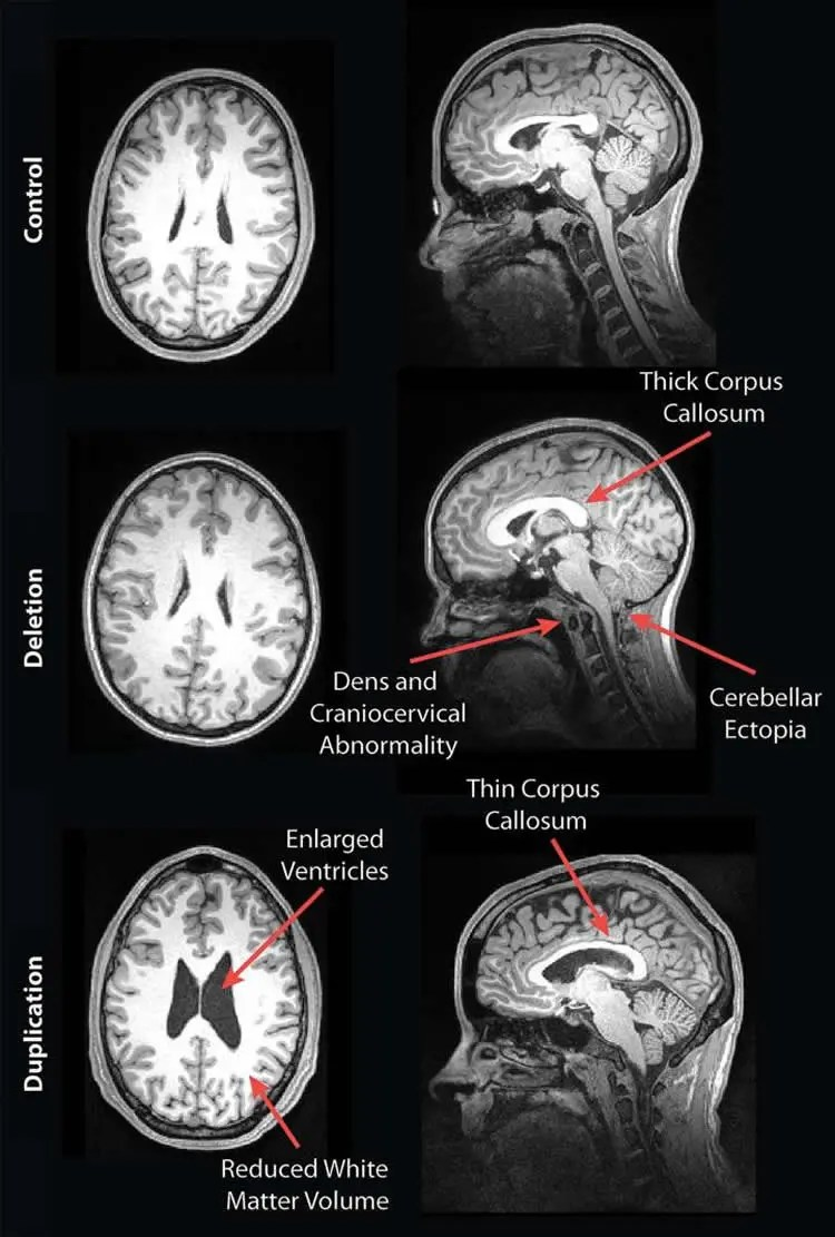 Image shows brain scans of people with genetic autism.