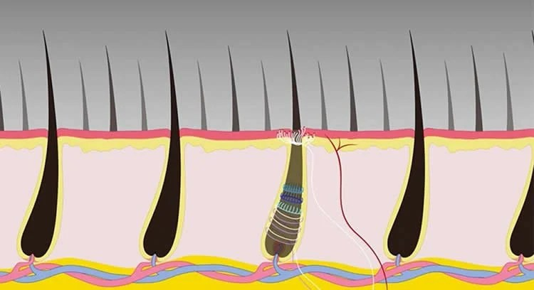 Image shows hair follicles.