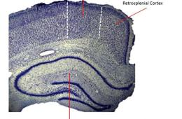 Image shows the location of the retrosplenial cortex in the brain.