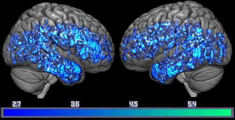 Lower Brain Serotonin Levels Linked to Dementia