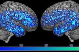 Image shows serotonin levels in brain scans.