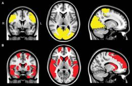 Image shows brain scans