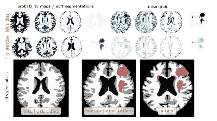 Image shows brain images.