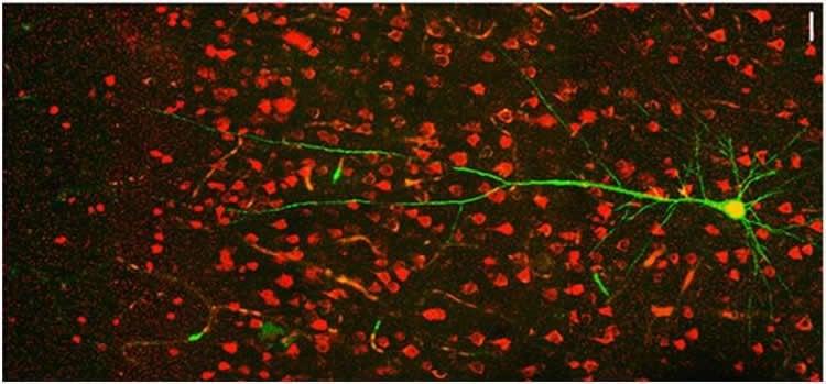 somatosensory cortex neurons.