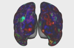 Image shows an fMRI brain scan.