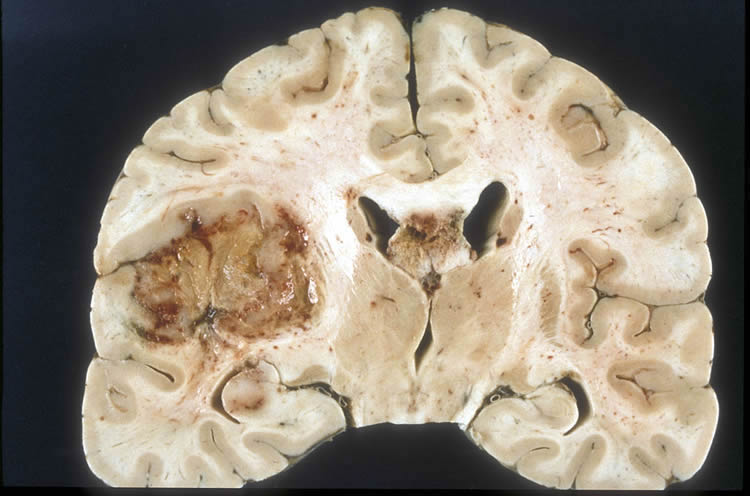 Image shows brain slice of a glioblastoma cancer.