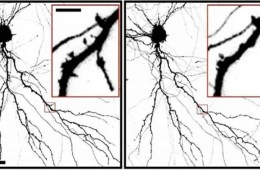 Image shows neuron spines.