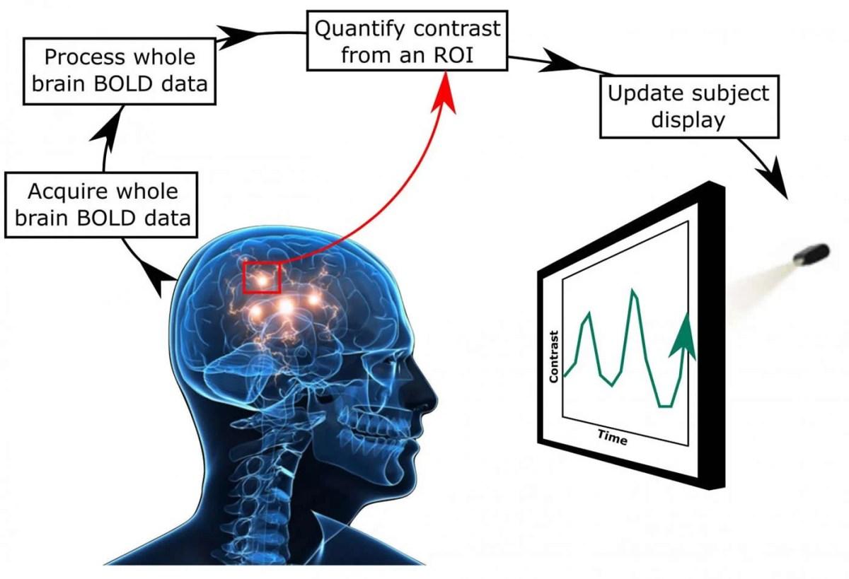 neurofeedback diagram