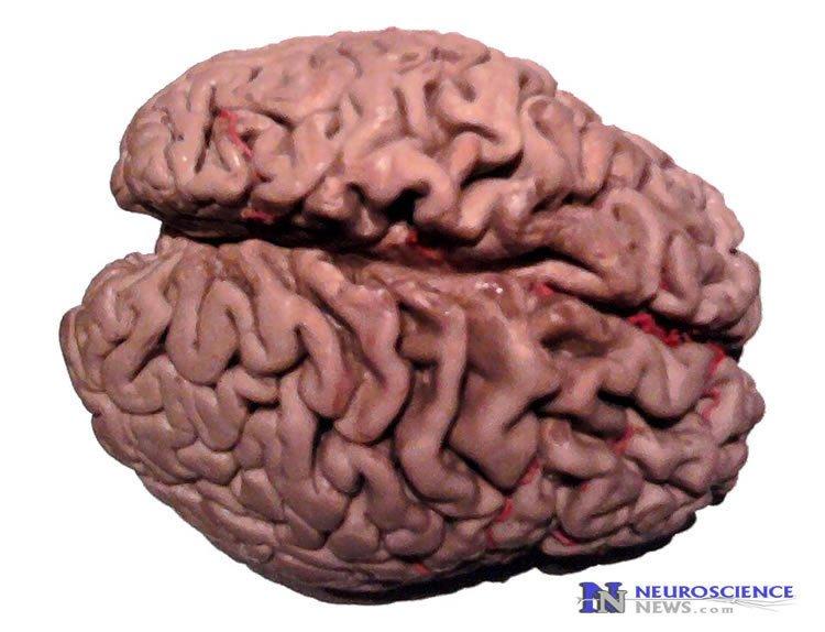 alzheiemrs brain