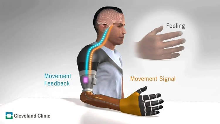 Image result for cleveland clinic bionics breakthrough kinesthesia