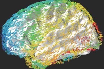 a brain is shown