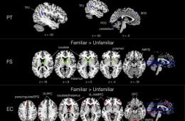 brain scans taken while people listened to music